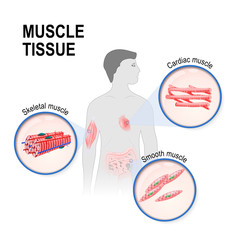 Types of muscle tissue.