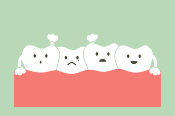 crowding teeth ( malocclusion )