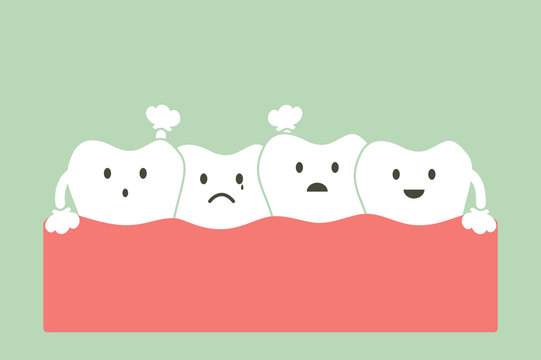 crowding teeth ( malocclusion )