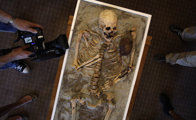 Members of the media surround a skeleton pierced with a piece of iron, on display at the National History Museum in Sofia
