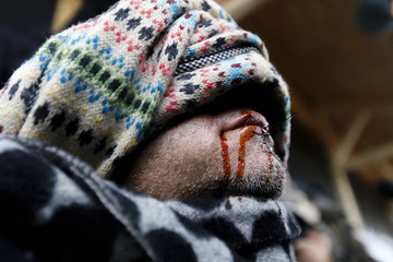 """An Iranian migrant, with his disinfected covered lips sewn shut, protest against the partial dismantlement of the camp for migrants called the """"jungle"""", in Calais"""