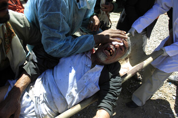A wounded anti-government protester is stretchered after clashes with police during a demonstration demanding the ouster of Yemen's President Ali Abdullah Saleh in Sanaa