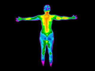 Thermographic image of the back of the whole body of a woman with photo showing different temperatures in range of colors from blue showing cold to red showing hot, can indicate joint inflammation.
