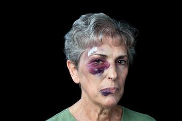 Beaten old woman