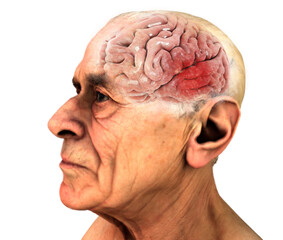 Cervello, malattie degenerative, Alzheimer, Parkinson, corpo umano, viso. Uomo anziano