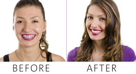 Beautiful woman, before and after dental braces, portrait closeup