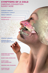 Sintomi di un raffreddore, anatomia umana, sezione 3d di un viso, ragazza con raffreddore. Allergia pollini. 3d rendering