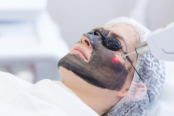 Process of photothermolysis, warming the skin, laser carbon peeling