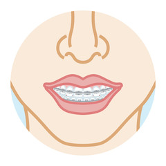 Orthodontics dentition, front view