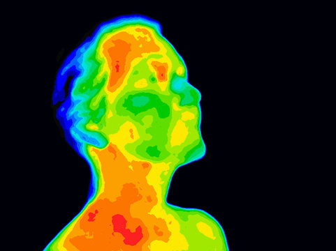 Thermographic image of human face and neck showing different temperatures in range of colors from blue cold to red hot. Red in neck might indicate raised CR-P levels and Carotid Artery inflammation.