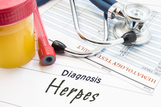 Diagnosis Herpes. Stethoscope, lab test tube with blood, container with urine and result of blood laboratory analysis are near doctor's opinion diagnosis of STDs disease Herpes