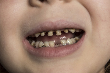 unhealthy baby teeth