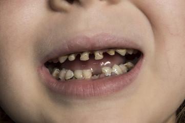 unhealthy baby teeth