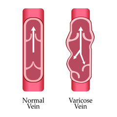 Vector varicose vein and normal vein. Varicose vein.