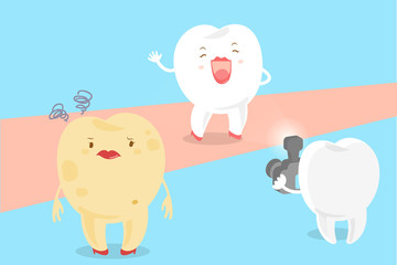 cartoon tooth with paparazzi