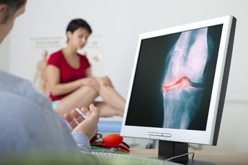 Models On screen, x-ray of a knee arthrosis