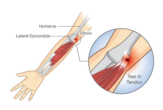 Muscle injury and tear in tendon at elbow area. Illustration about medical and health.