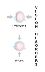 Myopia and myopia corrected by a minus lens. Eye vision disorder.