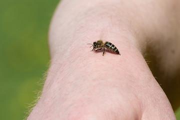 Biene Honigbiene (Apis mellifera) sticht in die Hand