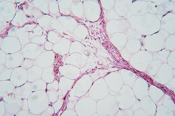 Breast tissue section, microscopic image