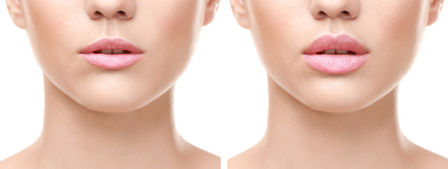 Female lips before and after augmentation procedure. Beauty concept