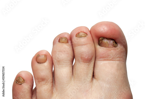 unhealthy toes with toenails affected by fungal disease\