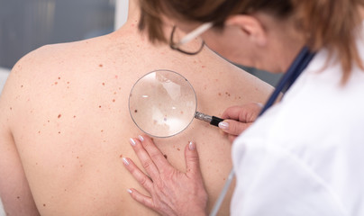 Dermatologist examining the skin of a patient