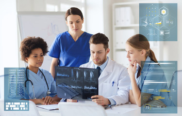 group of doctors discussing x-ray scan at hospital
