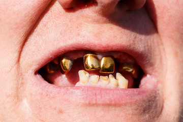 Golden teeth. Mouth without teeth.