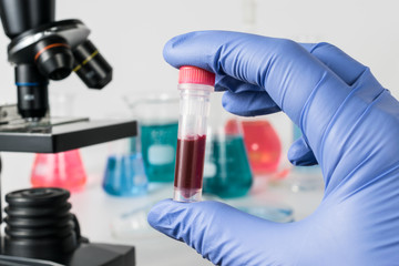Scientist with blood sample. Medical laboratory.