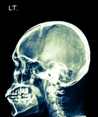 X-ray of head, skull in  left side