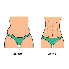 Thick and thin, overweight problems concept. Part of female torso with fat and lean abdomen and hips. Tummy before and after diet, fitness or liposuction. Vector illustration.