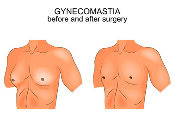 gynecomasty. before and after surgery