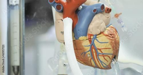 Artificial circulation of blood, man's artificial heart