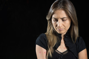 Young woman with red points in her arms after a mosquito bites, in a black background