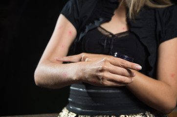 Close up of young woman suffering from itch after mosquito bites, aplying some dermatology cream, allergic skin treatment concept, in a black background