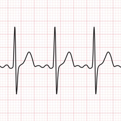 Cardiogram. Electrocardiogram. Graphic representation of heart work . Health and medicine.