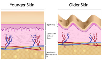 Wrinkled skin versus smooth skin