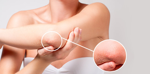 Body care. Woman has dry skin on elbow.
