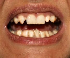 Crooked teeth. Orthodontics. Underdevelopment and defects of teeth.