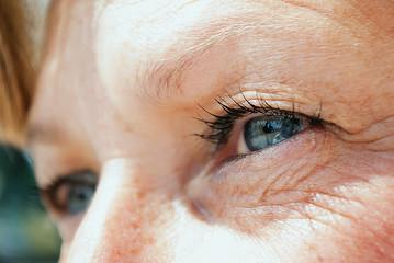 Rughe e imperfezioni della pelle