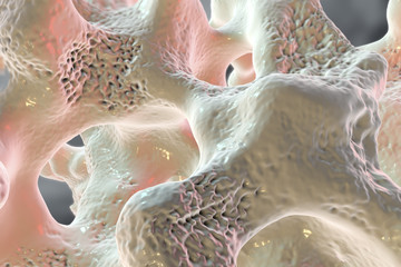 Spongy bone tissue affected by osteoporosis, 3D illustration