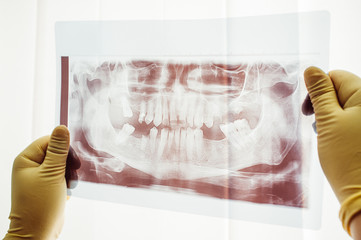 Panoramic scan of dental mutation closeup. Study of unusual dental problem. Doctor research ways of treatment of dental mutation