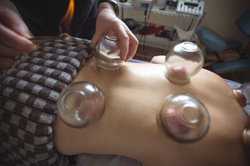 Therapist giving fire cupping therapy to man