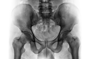 Film x-ray of normal human pelvis and hip joints .