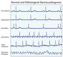 Normal and diseased ecg collection