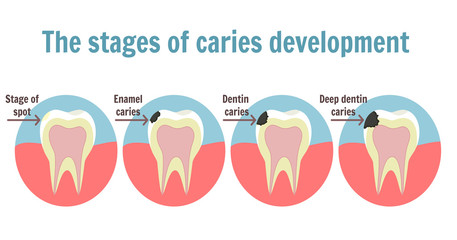 The stages of caries development. Dental toothache symbol. Illustration of tooth with spot, enamel caries, dentin caries and deep dentine caries