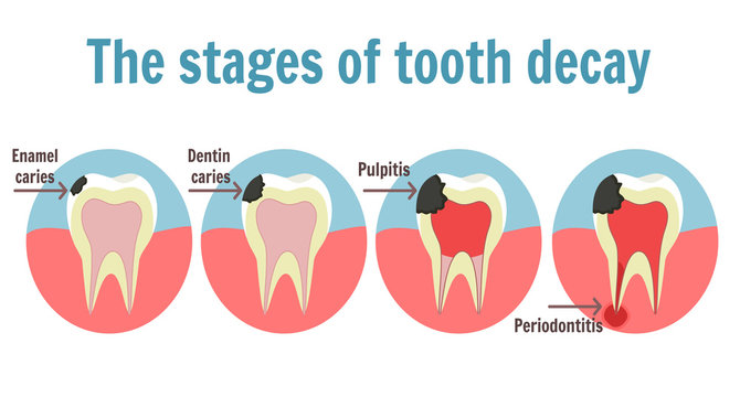 The stages of tooth decay infographic. Dental toothache symbol. Illustration of tooth with caries, pulpitis and periodontitis