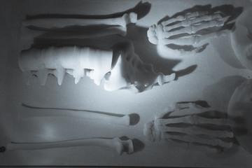 Skeleton made of resin