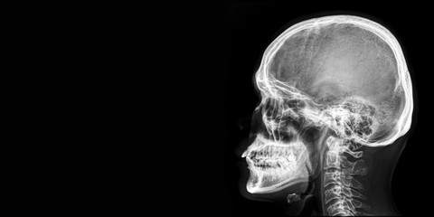 x ray of human head